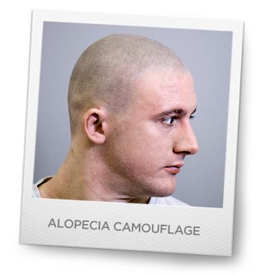 Alopecia Camouflage