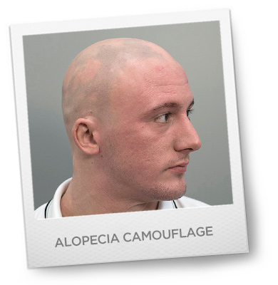 Alopecia Camouflage Treatment