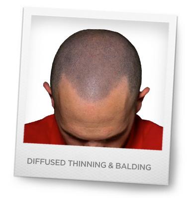 Diffuse balding