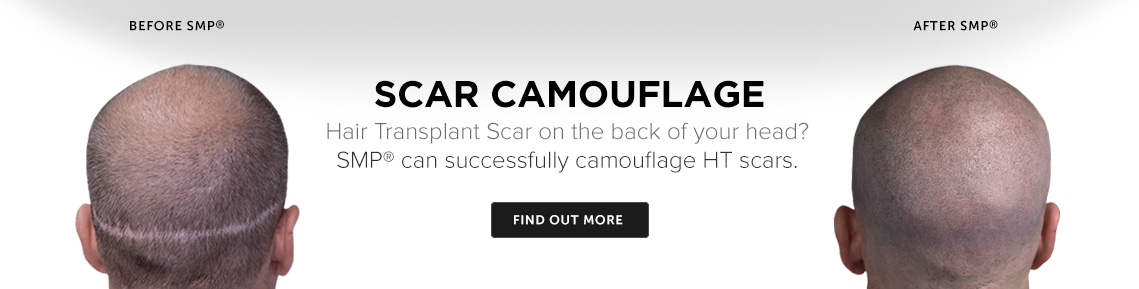 Scar Cmouflage