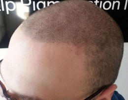 Cheaper is not necessarily better when it comes to scalp micropigmentation