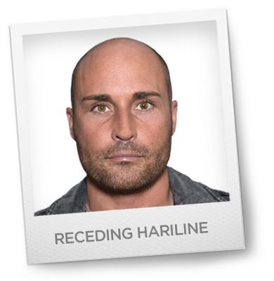 Receding Hariline